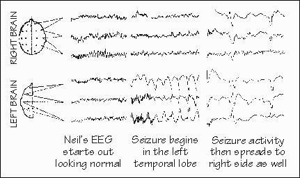 What Does A Focal Seizure Look Like In A Dog